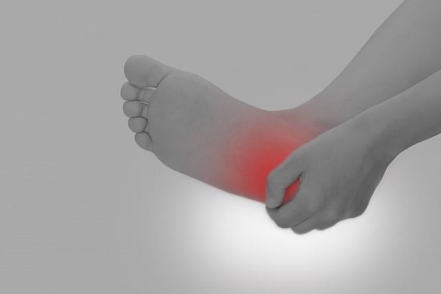 足底筋膜炎によるかかとの痛み